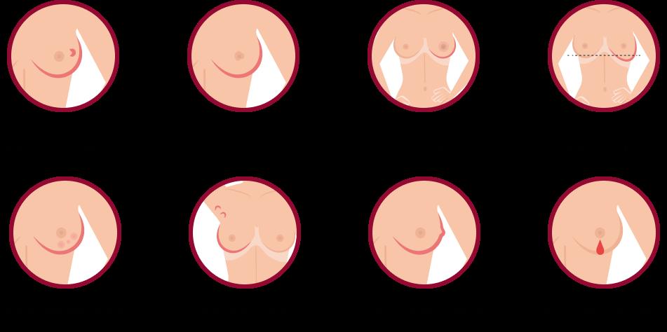 emlőrák kialakulása